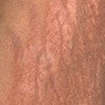 stretch marks caused by body building and bulking muscles too fast