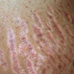 stretch marks caused by pregnancy