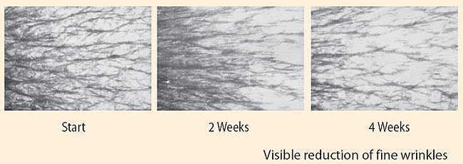visible reduction of fine wrinkles on skin