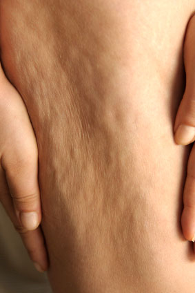 check if you have cellulite what is cellulite?