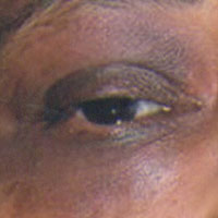hyperpigmentation periorbital area black rings around eyes Indian skin